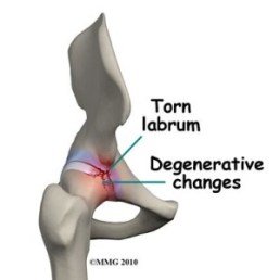 hip labral tear
