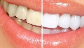 blanqueamiento-dental-white-light-tv-sellado-lo-ultimo-origi_MCO-F-3214521502_102012-230x230