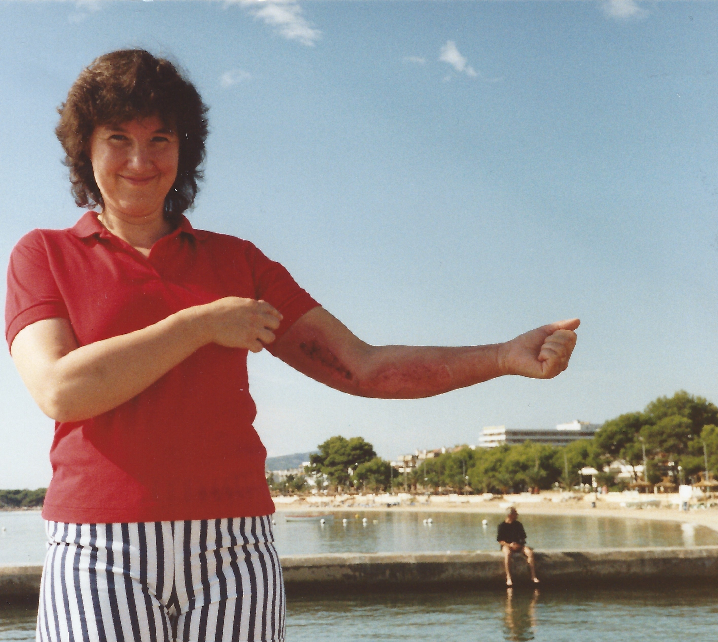 Lynda, sttod in shorts and tee-shirt in bright sunshine on a beach, with her left arm outstretched showing the red raw burn marks on her arm