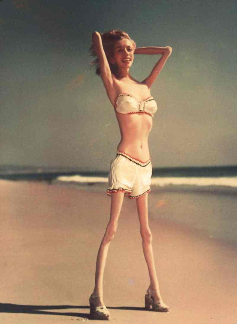 Anorexic-Celebrities-vinegret (2)