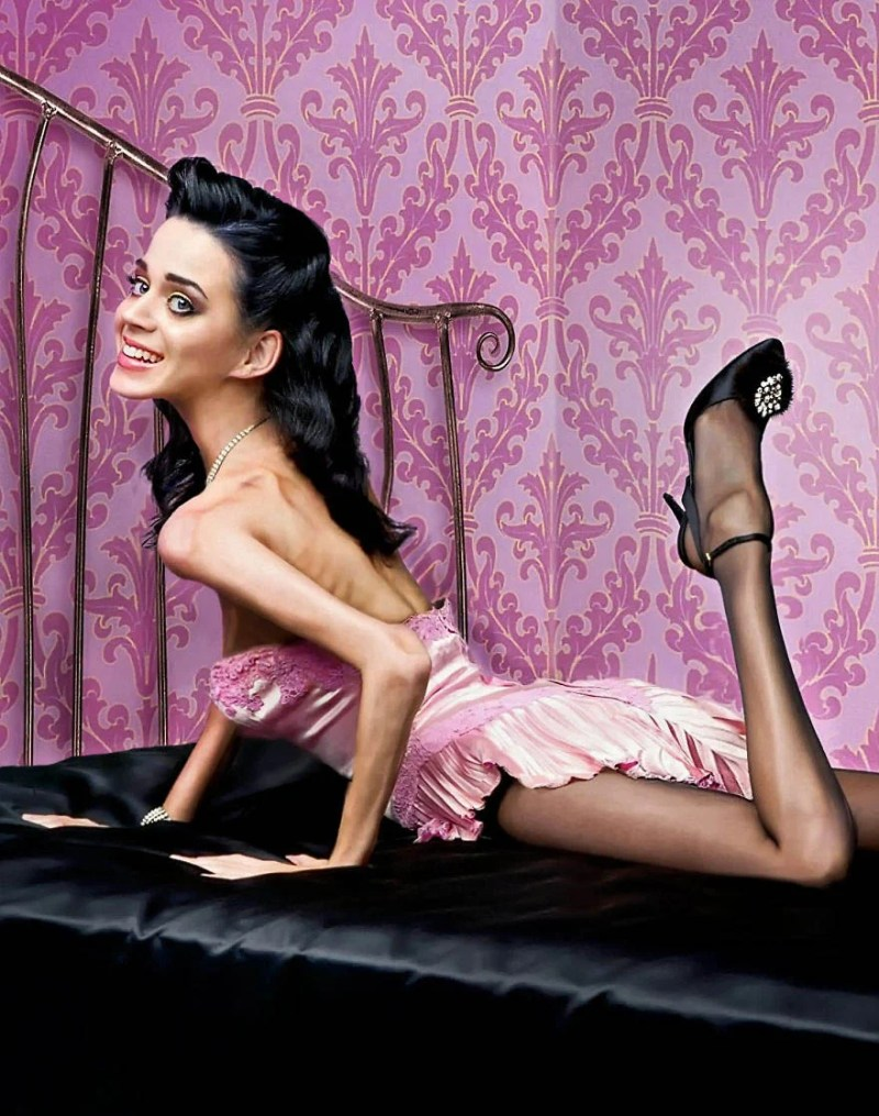 Anorexic-Celebrities-vinegret (8)