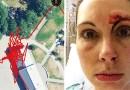 Фитнес-трекер зафиксировал всю борьбу женщины с маньяком; после столкновения лицо преступника выглядело хуже, чем у потенциальной жертвы.