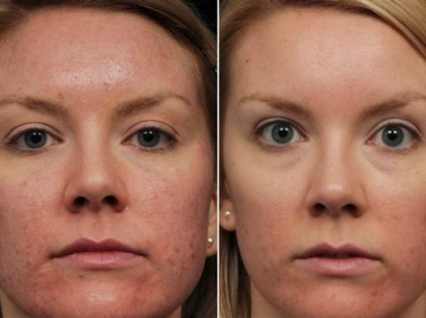 Фото до чистки лица и после – Чистка лица у косметолога ...
