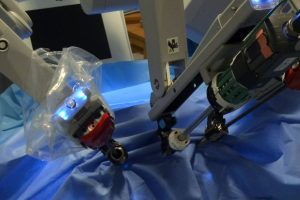 Researchers examine the ethical implications of AI in surgical settings