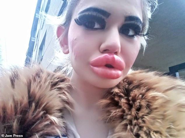 22 Year-old Student from Bulgaria Has World Big Lips Andrea Emilova Ivanova