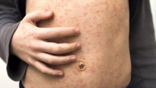 التطعيم ضد فيروس الحصبة