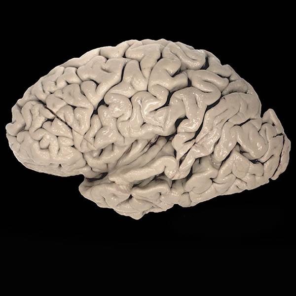 Human_brain_web