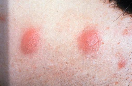 acne nodule