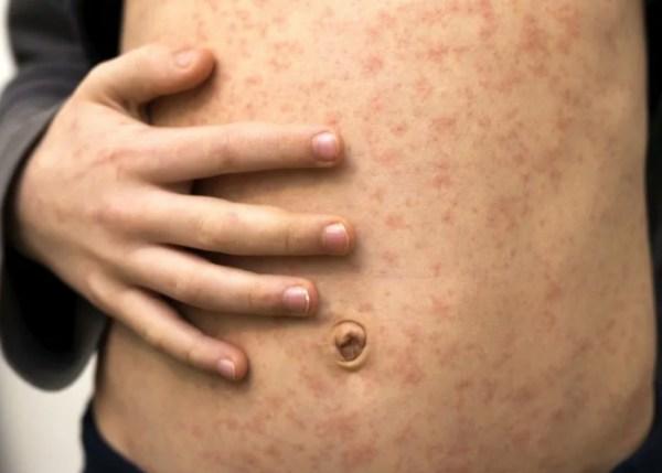 Сыпь при коронавирусе: фото, как выглядит, у детей, как лечат