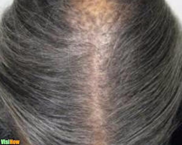 Cure Hair Loss Due To An Inflamed Scalp VisiHow
