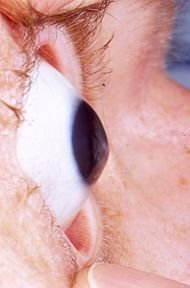 Cornea With Keratoconus
