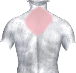 neck strain - lifting and carrying