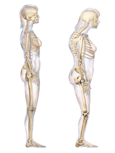 tips to improve posture - hunched back