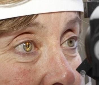 Clinica De Ojos Monterrey Clinicas Para Operar Cataratas