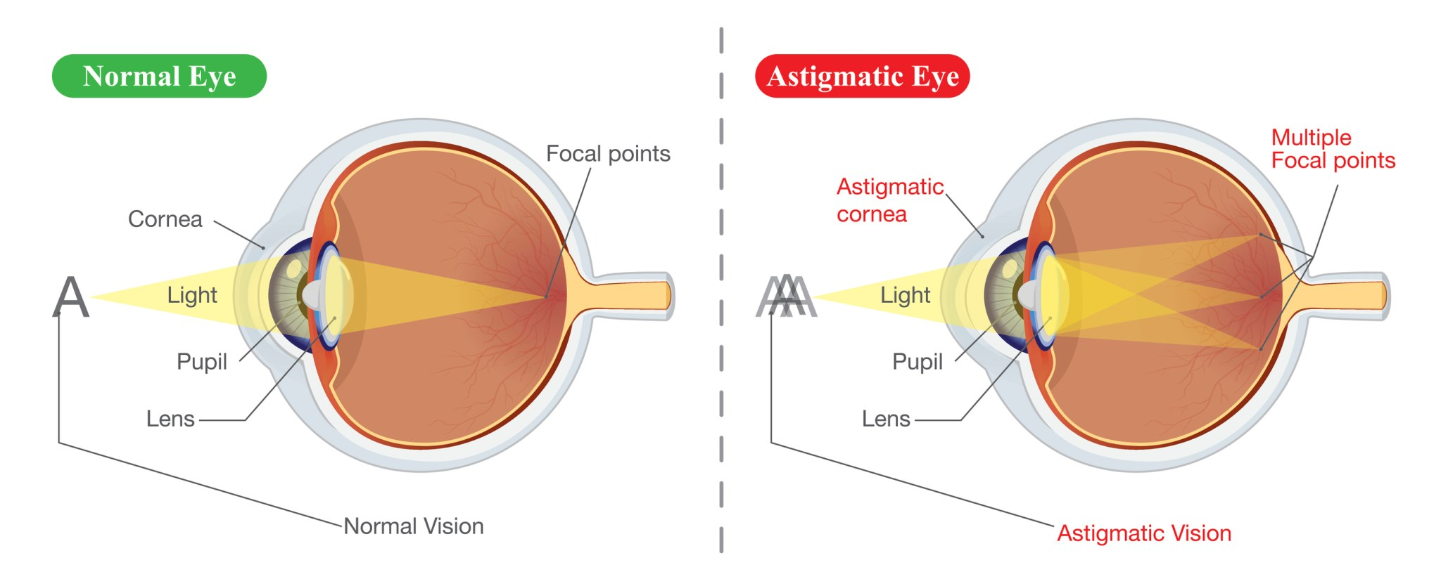 I have astigmatism, so does that mean I'm not suitable for laser eye surgery?