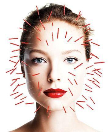 Paige Bourassa acupuncture