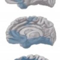 Alzheimer, aluminium en magnesium