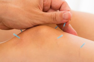 sports-acupuncture