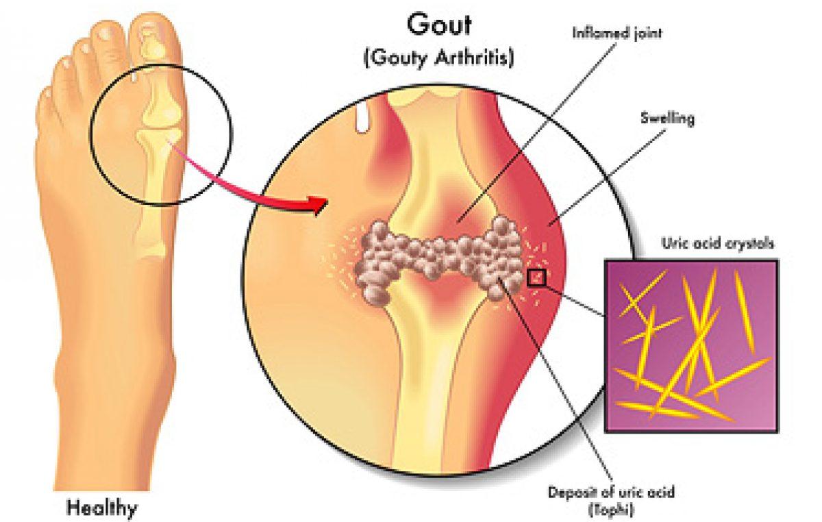 Homeopathic Medicine Arthritis Pain