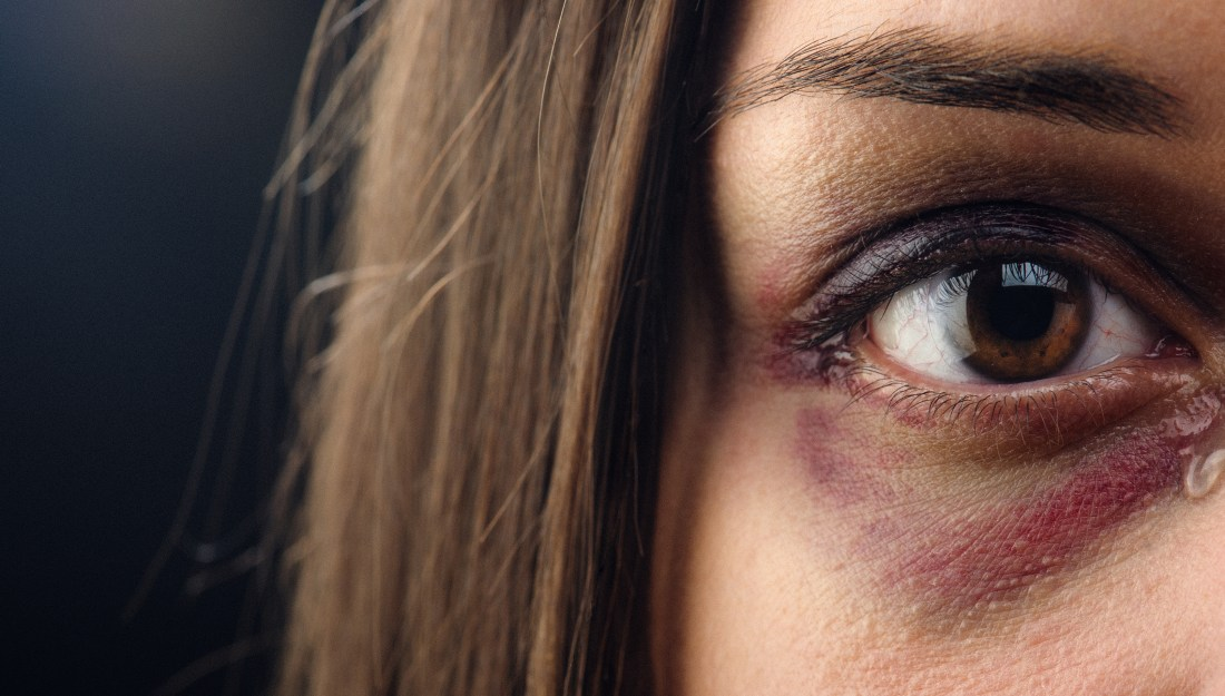woman with a black eye crying