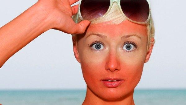 sunburn sickness