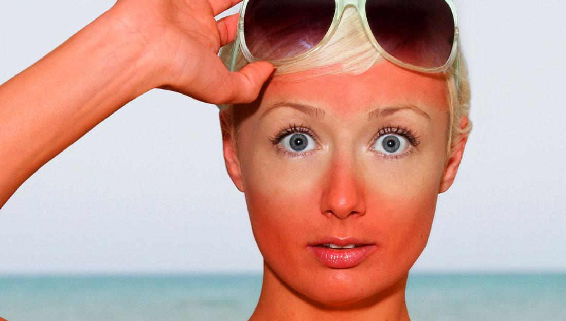 Image result for sunburn