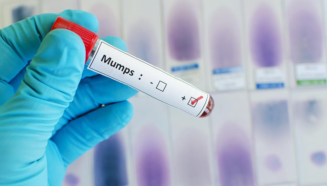 Mumps