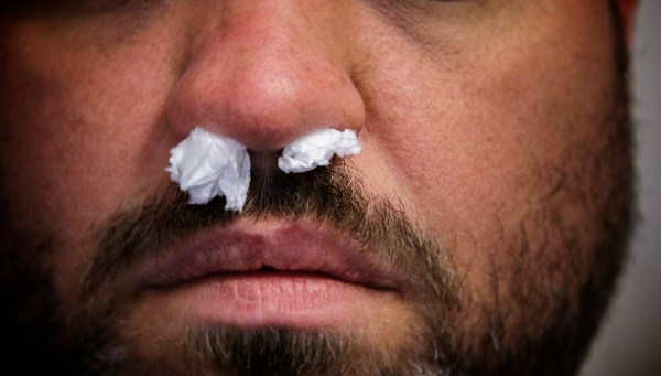 Nosebleeds are common, and can be a side effect of the environment
