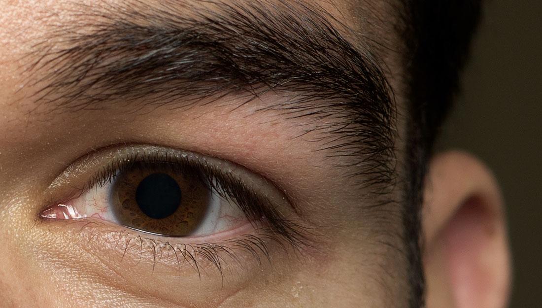 Eyelid twitch