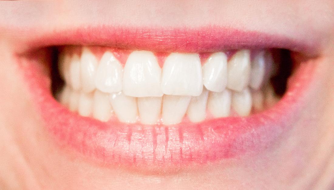 A breakdown of teeth grinding – Vital Record