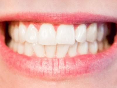 A breakdown of teeth grinding
