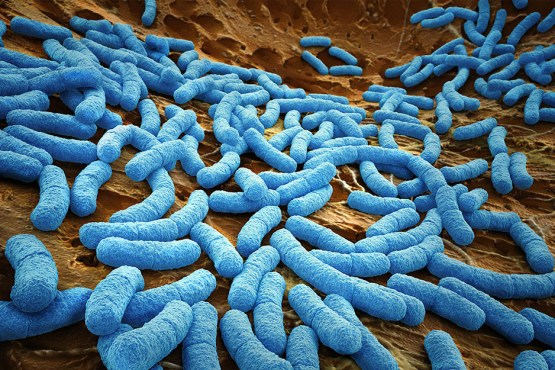 Hospital-acquired infections are both a cause of and contribute to antimicrobial resistance