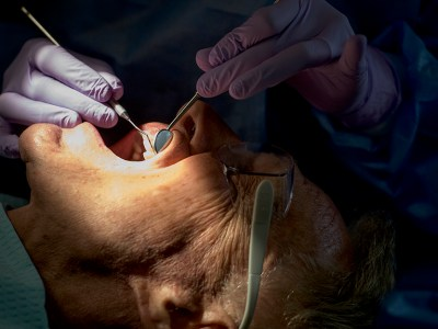 A root canal may not be as bad as you once thought