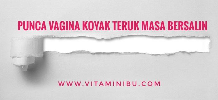 5 Punca Vagina Koyak Teruk Masa Bersalin Normal – Bakal Ibu, Sila Fahamkan