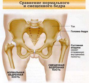 a csípő dysplasia nem kezelésének következményei)