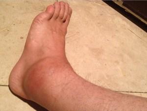Cum să bandajezi picioarele cu un bandaj elastic - Structura
