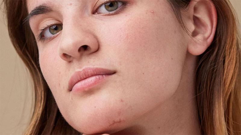 eliminare le cicatrici sul viso, sul mento, sulla fronte, sulle guance, sul naso con la crema lifting