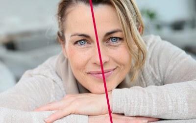 Argirelina, lo straordinario antiage ad effetto immediato