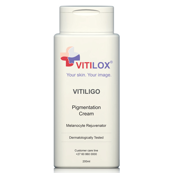 Vitilox® Vitiligo Pigmentation Cream