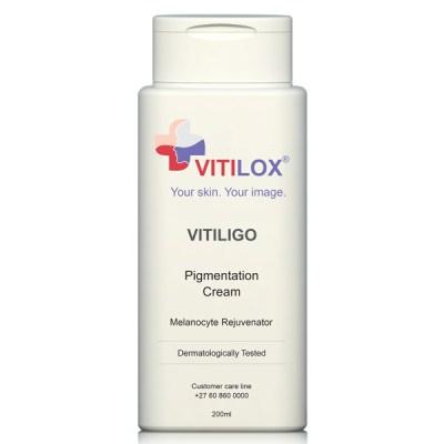 Vitiligo Vitilox Pigmentation Cream