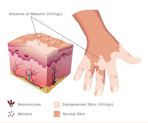 Vitiligo and Pigmentation