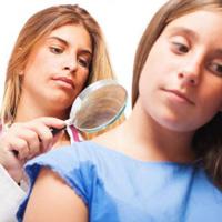 Vitiligo Consultants and assessments