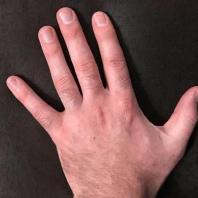 Vitiligo Hand Treatment - Case Study