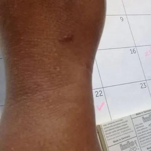 Vitiligo Skin Treatment Complete