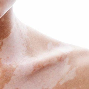 Treating a High Vitiligo Coverage