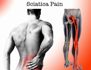 sciatica-low-back
