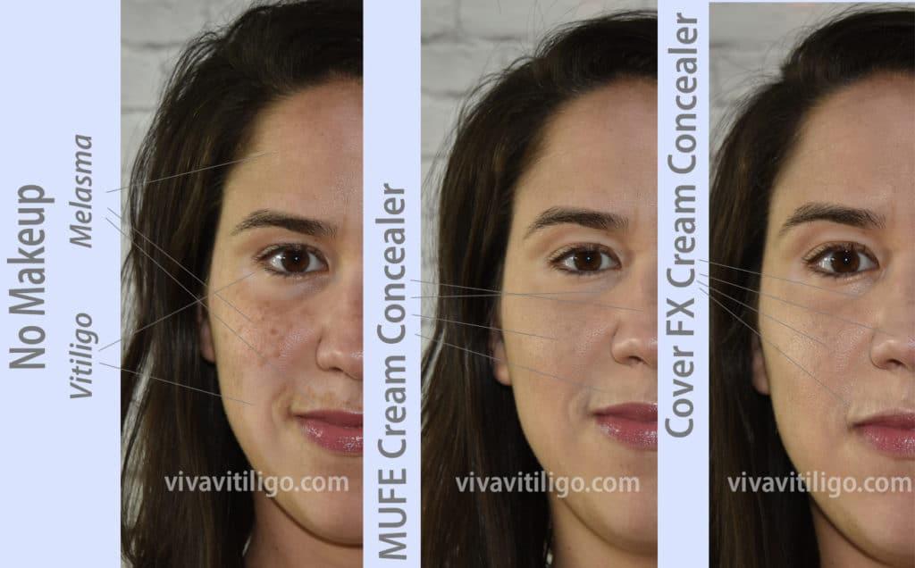 melasma and vitiligo long last cream concealer comparison