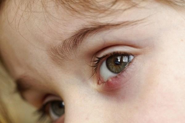 Быстрое лечение ячменя на глазу у детей - препараты, фото ...