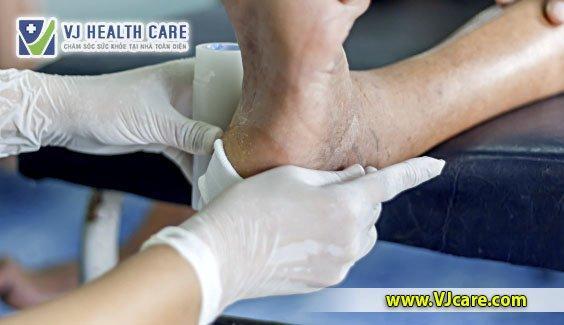 nguyên tắc thay băng rửa vết thương của điều dưỡng chăm sóc vết thương