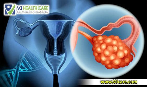ung thu buong trung co di truyen khong _ asia health  Ung thư buồng trứng có di truyền không thưa bác sĩ? ung thu buong trung co di truyen khong   asia health